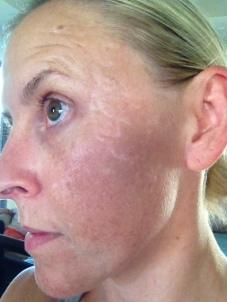Scars today (no makeup no filter)